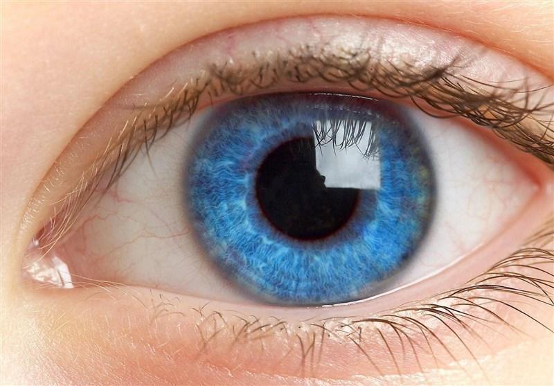 شایع ترین بیماری های چشمی را بشناسید